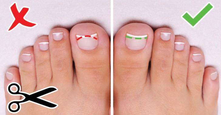 taglio correto delle unghie